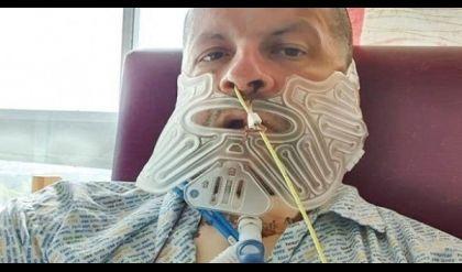 رفض الذهاب إلى طبيب الأسنان طوال 27 عاماً.. فكانت النتيجة مروعة