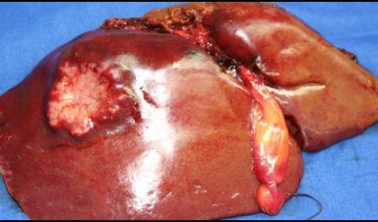 عقار يثبت فاعلية في علاج سرطان خلايا الكبد